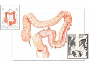 diverticoli-colon-dr.tessera