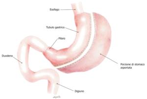 Sleeve Gastrectomy chirurgia bariatrica contro l'obesità Centro Specialistico San Martino Vergiate Varese