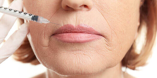 Rughe contorno labbra: il prezzo del fumo sulla tua bocca