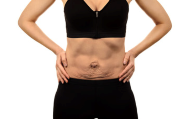 Diastasi addominale: definizione, cause, sintomi e chirurgia