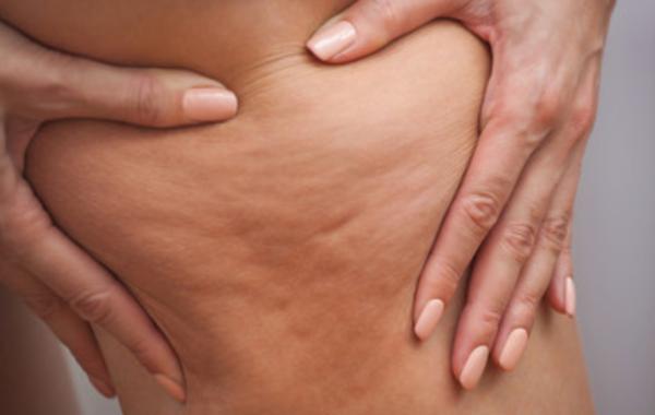 Pelle a buccia d'arancia: come combattere la cellulite