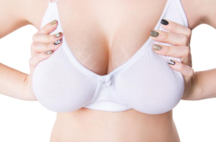 Mastoplastica riduttiva: i problemi di un seno troppo grande