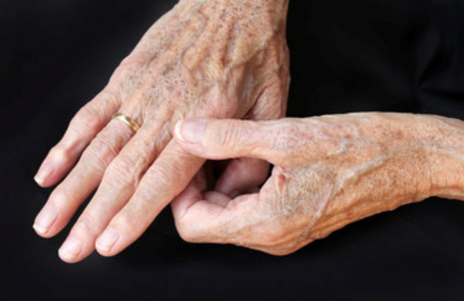 Ringiovanimento delle mani: i rimedi per mani più giovani