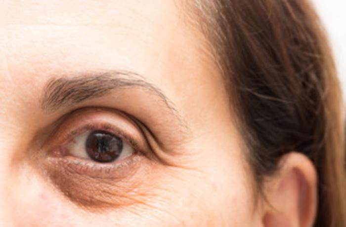 Rimedi Occhiaie con la Medicina Estetica