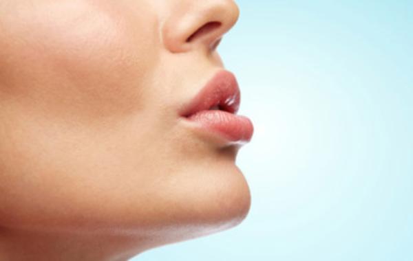 Filler labbra con ialuronico: rifarsi le labbra ma senza esagerare