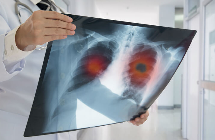 Tumore Polmonare Vergiate Varese