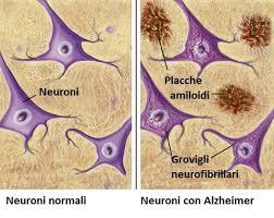 Neuroni normali e Neuroni con Alzheimer